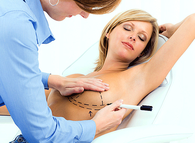Breast surgery recovery time