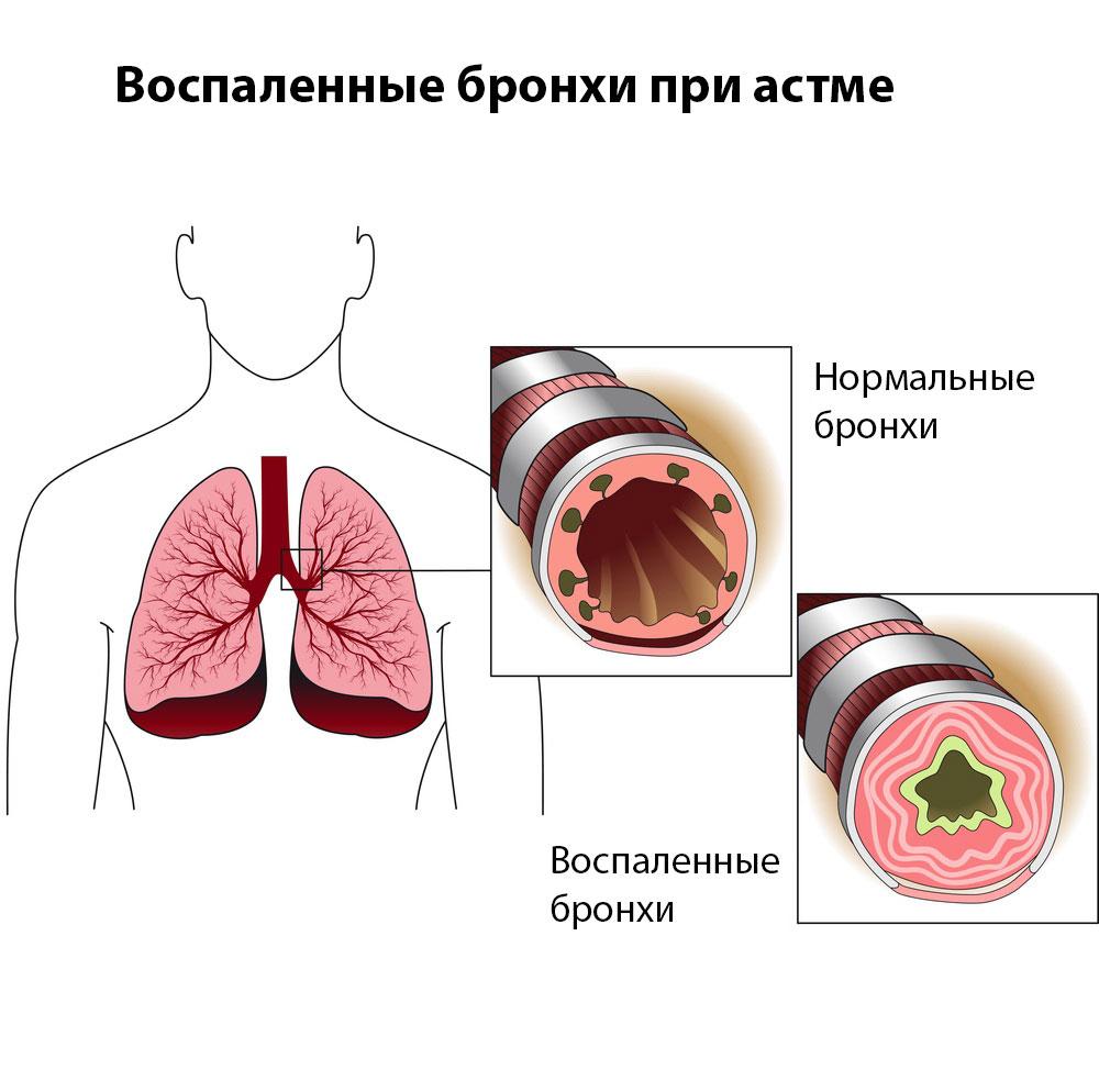 Бронхиальная аденома