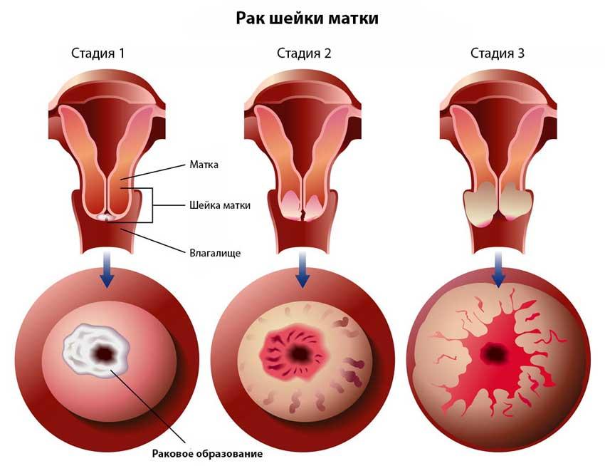 Стадии рака шейки матки