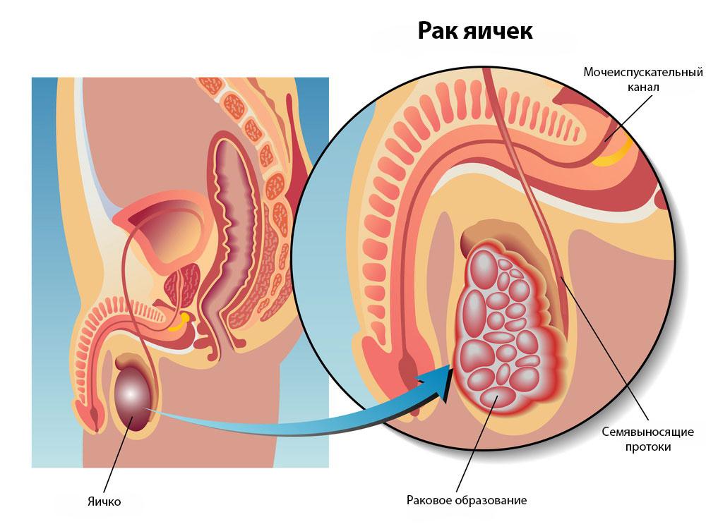 Рак яичек